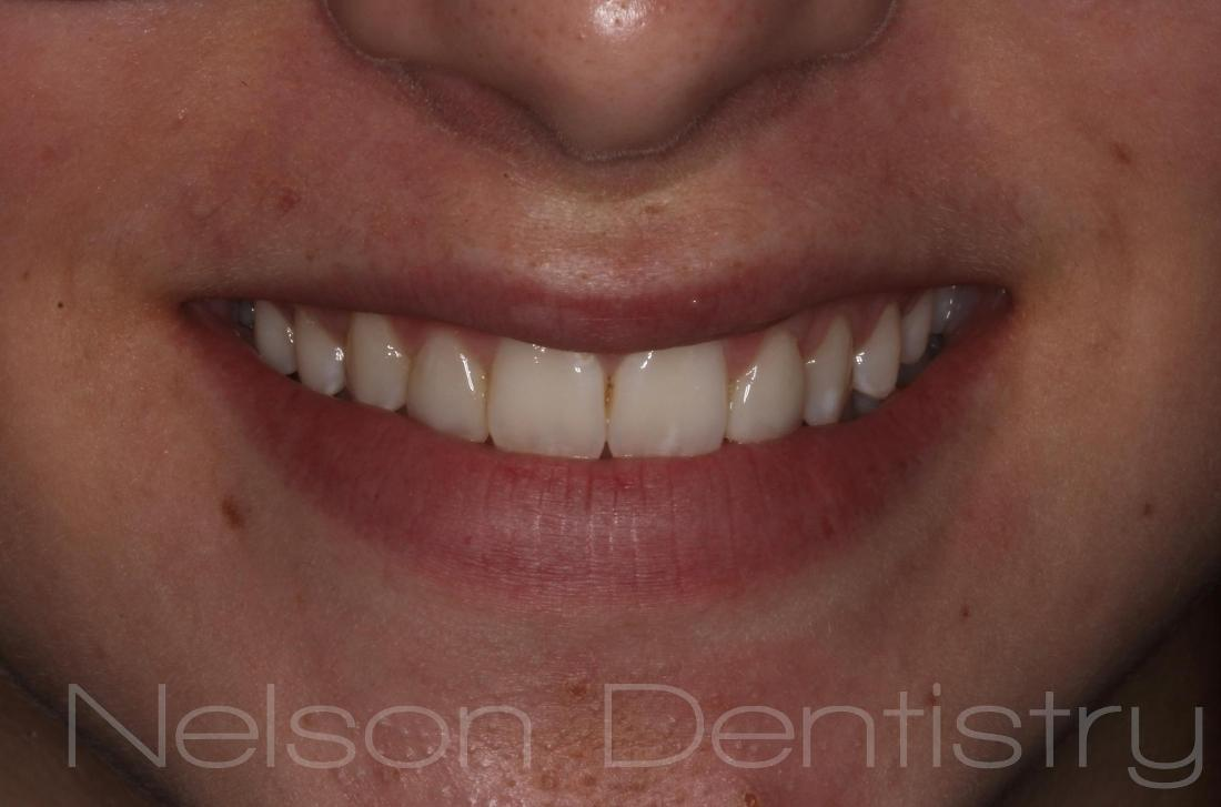 New Smile with Composite Fillings