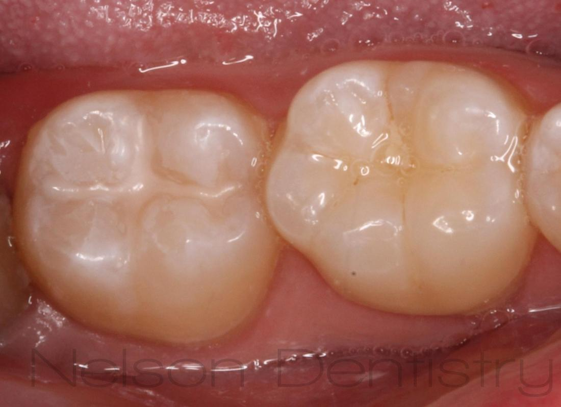 Sealants That Help Prevent Early Tooth Decay