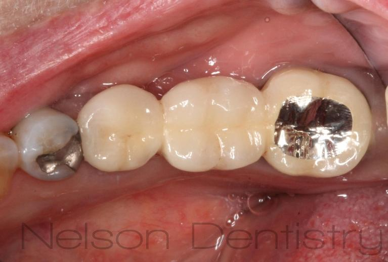 Bridges-and-Fixed-Partial-Dentures-After-Image