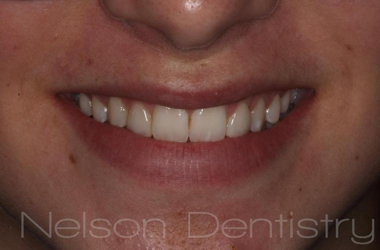 New-Smile-with-Composite-Fillings-After-Image