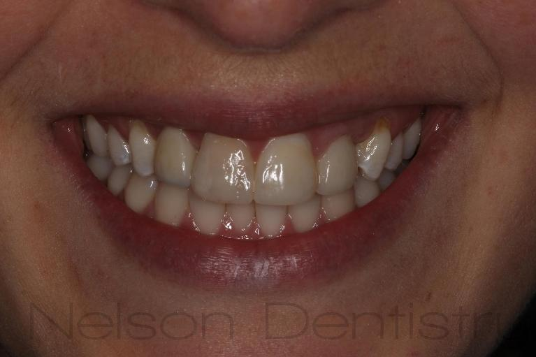 Smile-Makeover-with-Dental-Implants-and-Composite-Veneers-After-Image