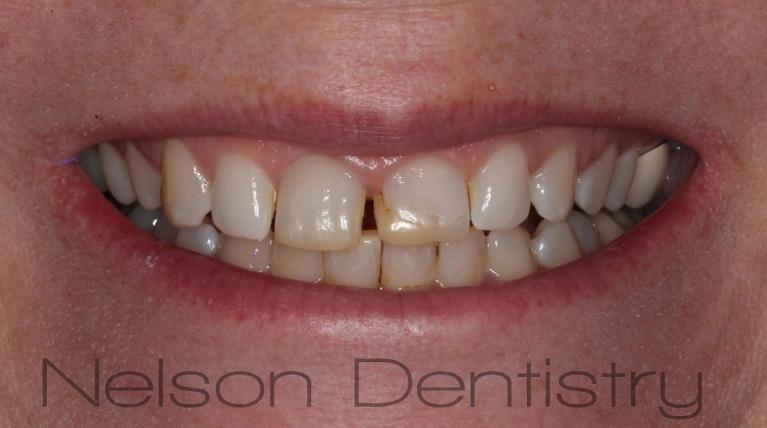 Composite-Veneers-Half-the-Cost-of-Porcelain-Before-Image