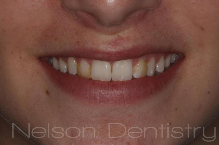 New-Smile-with-Composite-Fillings-Before-Image