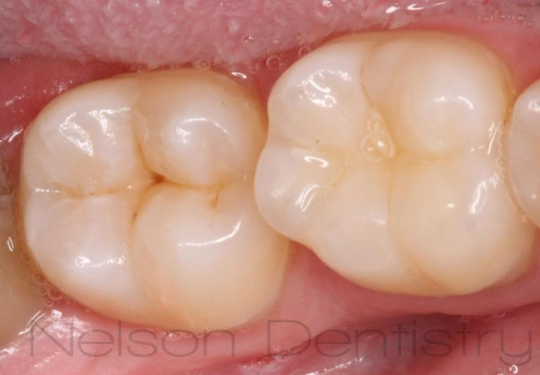 Sealants-That-Help-Prevent-Early-Tooth-Decay-Before-Image