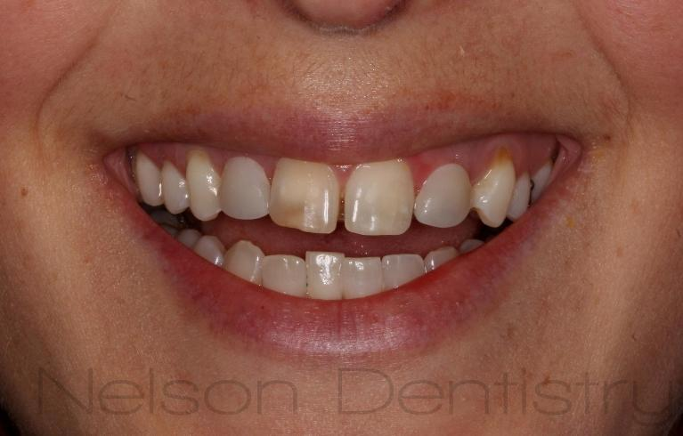 Smile-Makeover-with-Dental-Implants-and-Composite-Veneers-Before-Image
