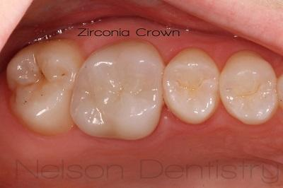 Nelson Dentistry Missoula Zirconia All Porcelain Crown