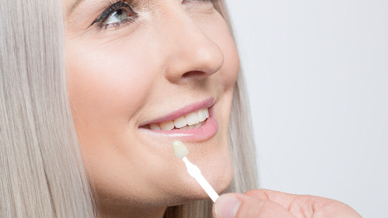 Woman Getting Fitted for Veneers | Cosmetic Dentistry in Missoula MT