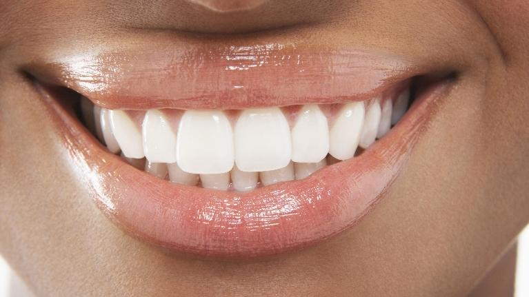Up Close Smile of Whitening Teeth | White Spot Removal Dentist in Missoula