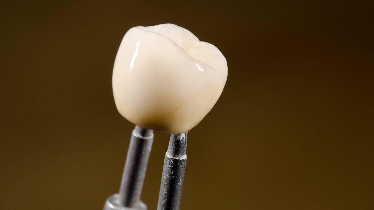 Dental Crowns in Missoula MT