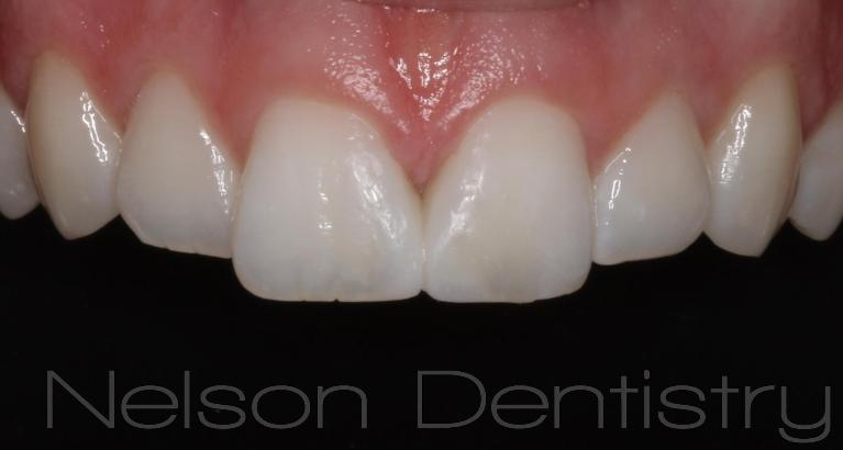 Natural-Tooth-Colored-Fillings-That-Look-Great-After-Image