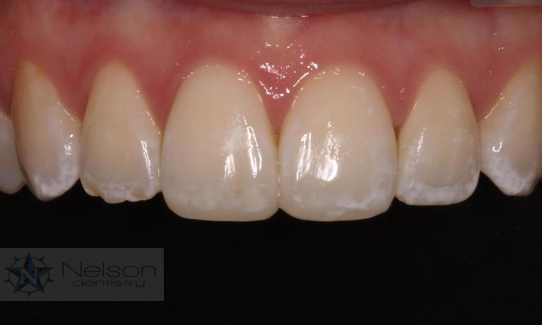 Bonding-to-Repair-Chipped-Teeth-After-Image