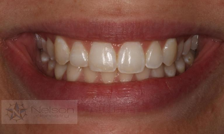 Bonding-to-Repair-Fractured-Teeth-After-Image