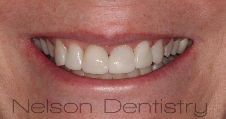 Composite-Veneers-Half-the-Cost-of-Porcelain-After-Image