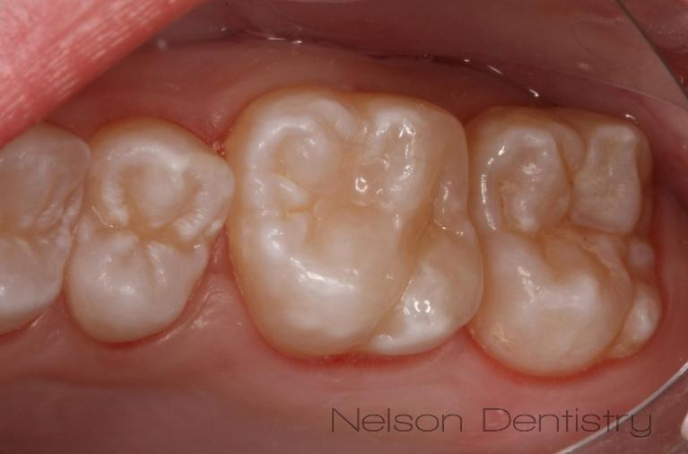 Tooth-Colored-Fillings-for-Beautiful-Back-Teeth-Posterior-After-Image