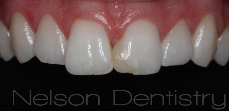 Natural-Tooth-Colored-Fillings-That-Look-Great-Before-Image