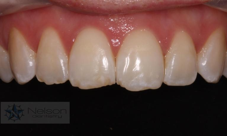 Bonding-to-Repair-Chipped-Teeth-Before-Image