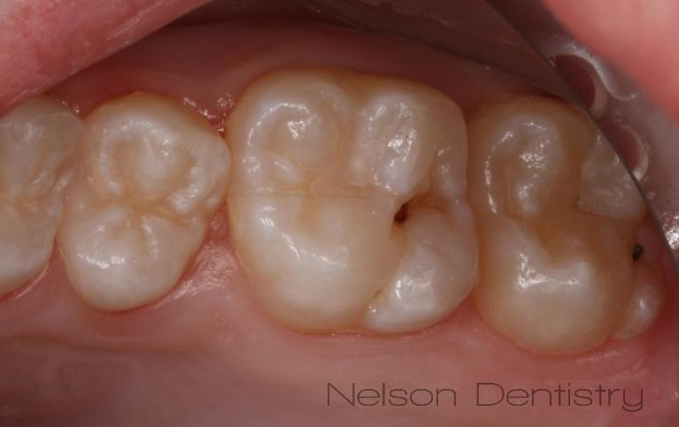 Tooth-Colored-Fillings-for-Beautiful-Back-Teeth-Posterior-Before-Image